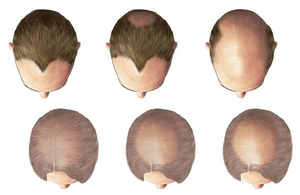 erkek tipi saç dökülmesinin sonuçları