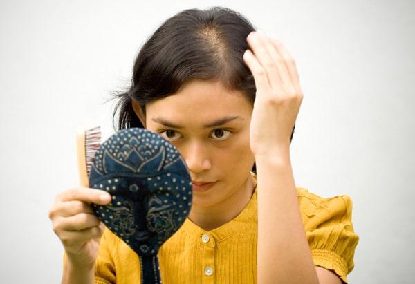 kadınlarda saç dökülmesi sonuçları