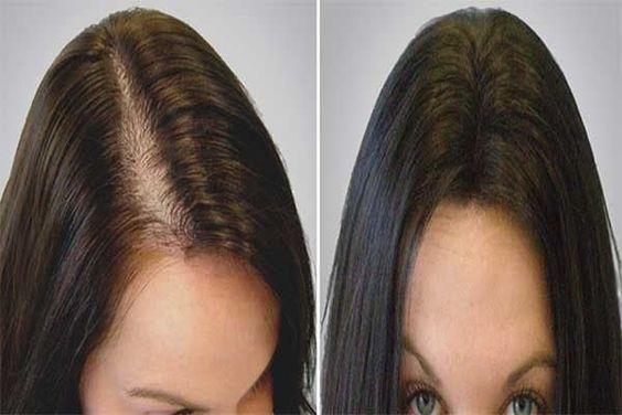 Kadınlarda saç dökülme tipleri