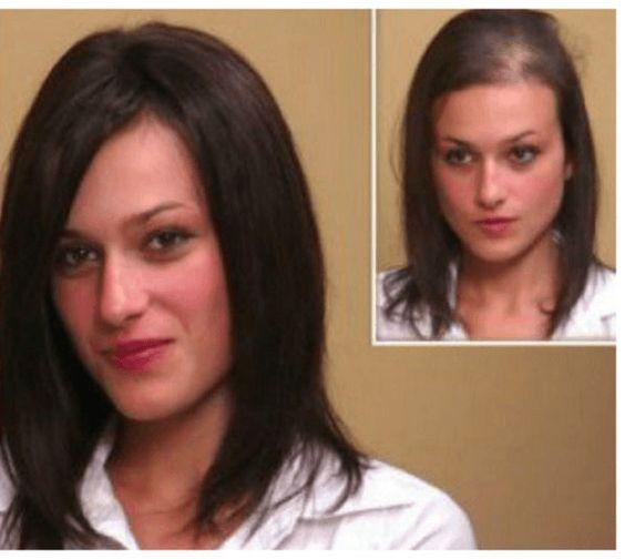 Kadınlarda saç dökülmesi nasıl önlenir