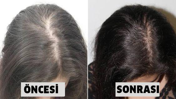 Kadınlarda saç dökülmesine çözüm