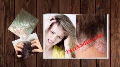 Saç Derisinde Kaşıntı Nedenleri Ve Tedavisi