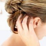 saç derisi neden kaşınır