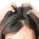 saç diplerinde kaşıntı