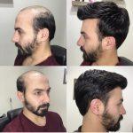 Protez saç bakımı yapan yerler