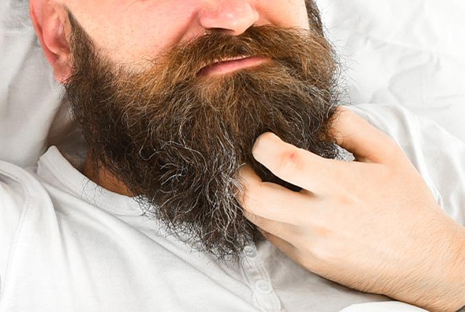 Uzun sakal kaşıntısı