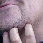 Yeni çıkan sakal kaşıntısı