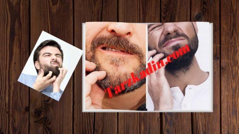 Sakal Kaşıntısı Nasıl Geçer Tedavisi